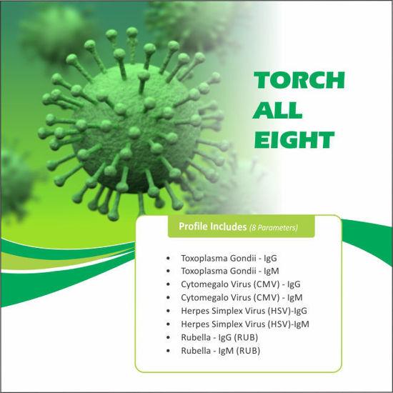 Torch 8 Profile