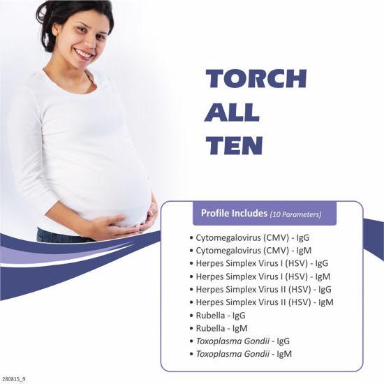 Torch All Ten