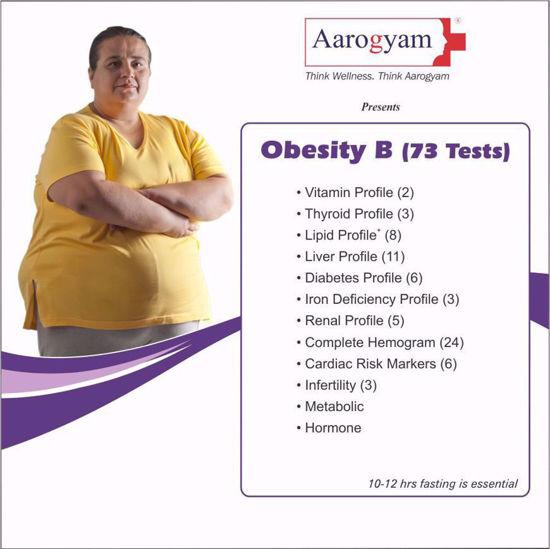 Obesity B