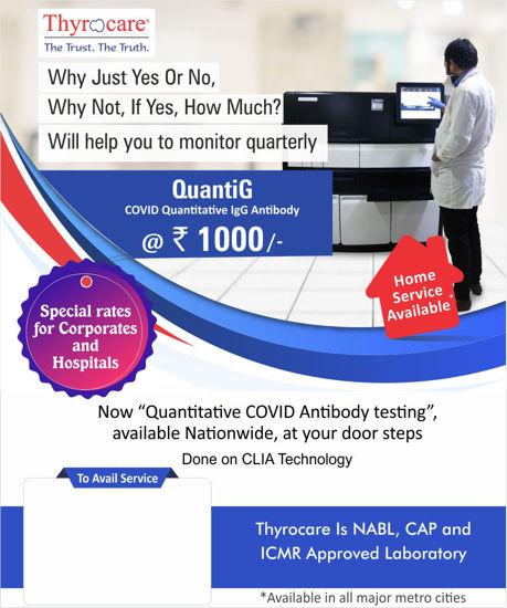 Quantitative Covid Antibody Testing