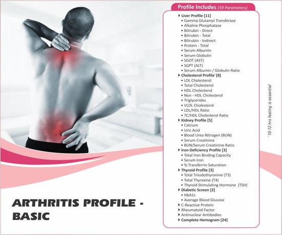 ARTHRITIS PROFILE Basic