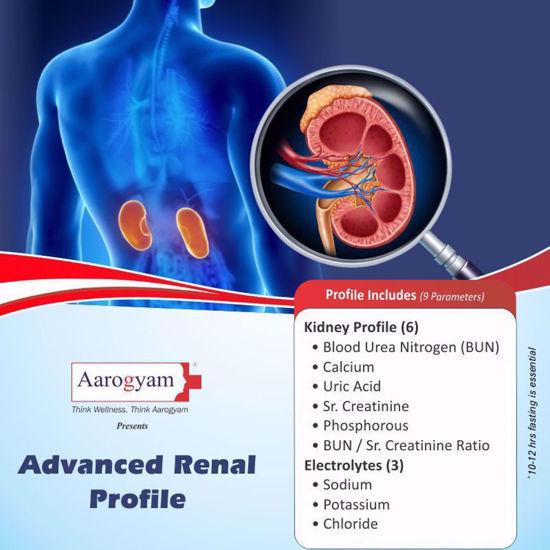 Renal profile